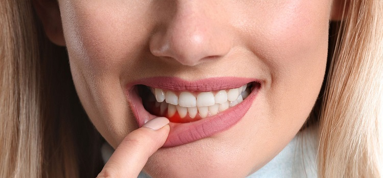Spotting the Early Signs of Gum Disease